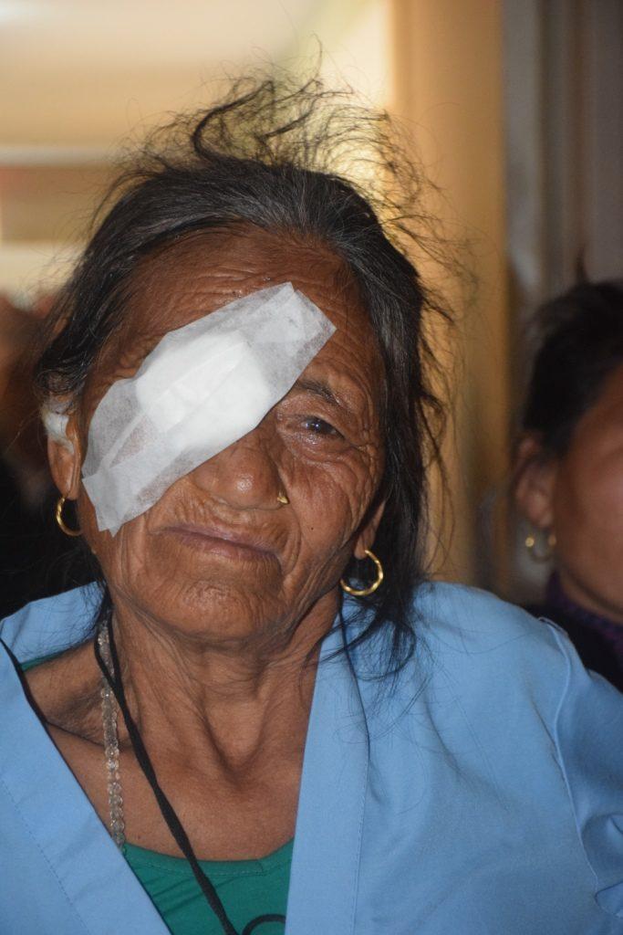 Begin februari 2017 kwamen 349 mensen met oogklachten naar het Kumari-gezondheidscentrum. 49 van hen werden een dag na de screening al geopereerd.